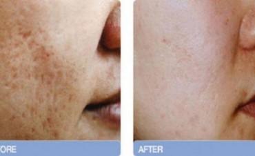 Técnica para eliminar las cicatrices del acné de forma permanente