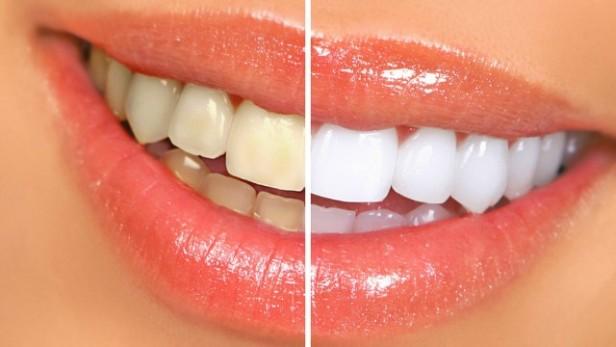Alimentos para blanquear los dientes naturalmente