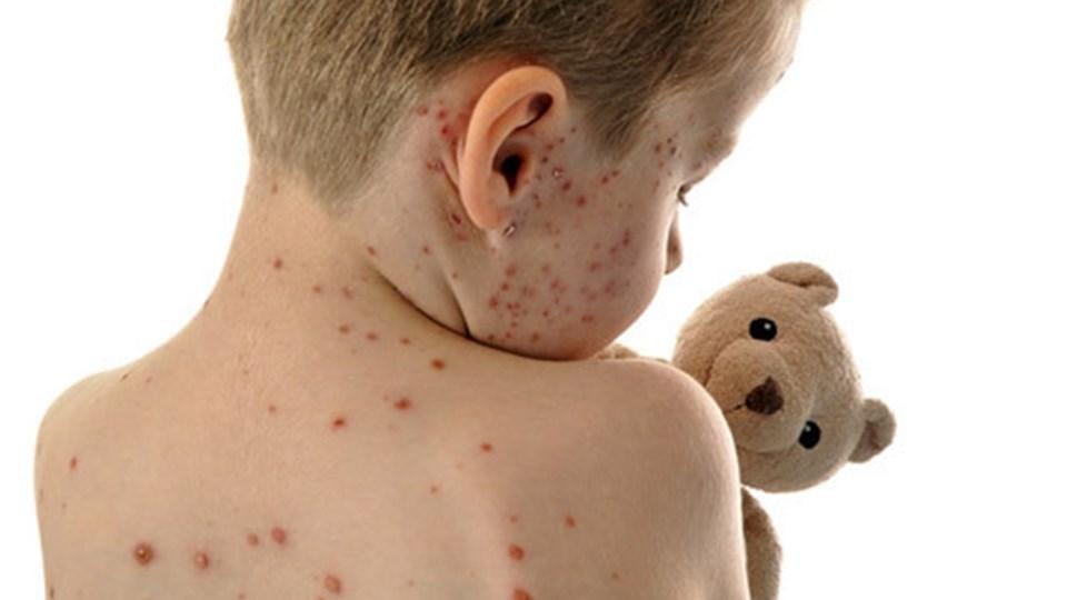 Sarampión: ¿Qué es, cuáles son los síntomas y cómo prevenirlo?