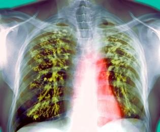 Antigua pero vigente, la tuberculosis aún afecta a miles de personas por año