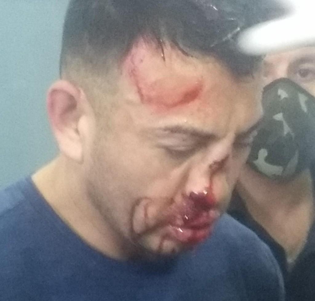 Al femicida de Los Toldos le dieron una paliza y le destrozaron la cara.