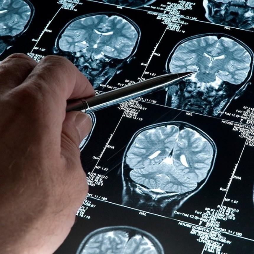 Descubren un gen protector del Alzheimer y desarrollan una plataforma rápida de pruebas para un fármaco