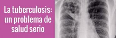 La salud de nuestros hijos By Dr Julio Monti: La Tuberculosis